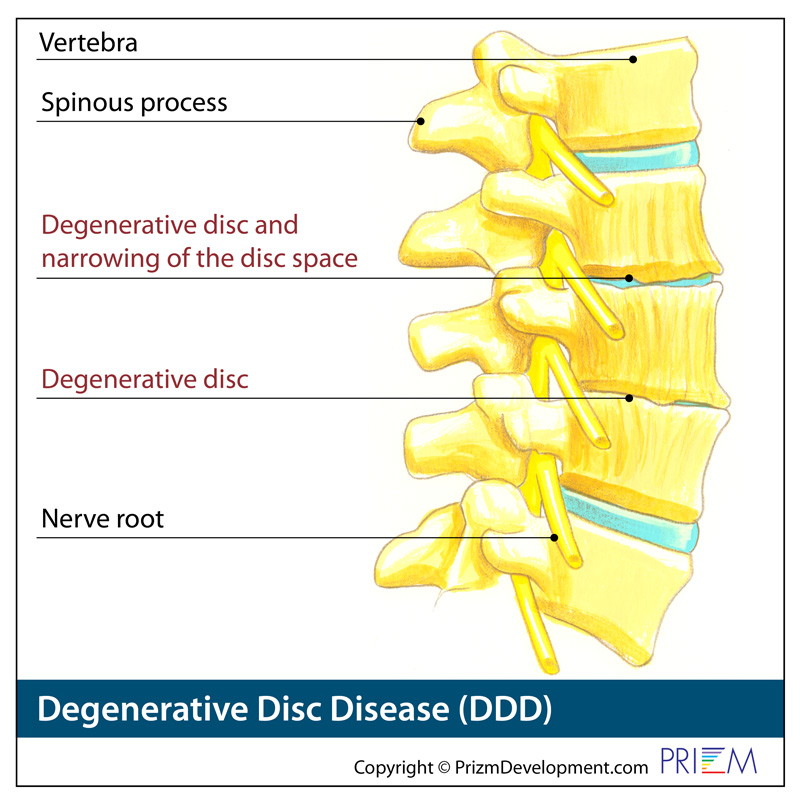 degenerative disc king of prussia